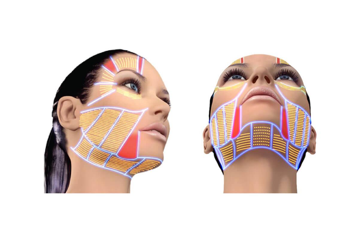 kosmetické přístroje hifu přístroj